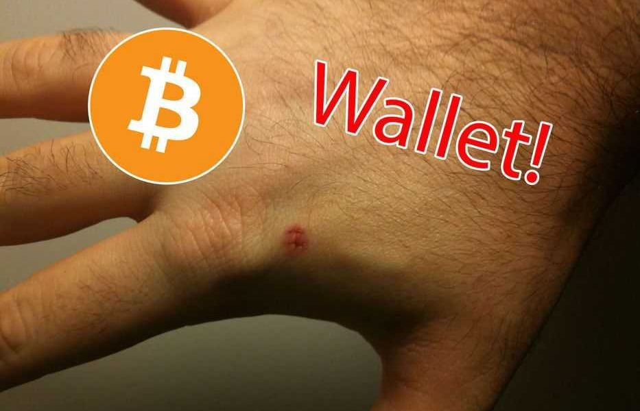 People Are Using Tech Implants To Turn Their Limbs Into Bitcoin Wallets